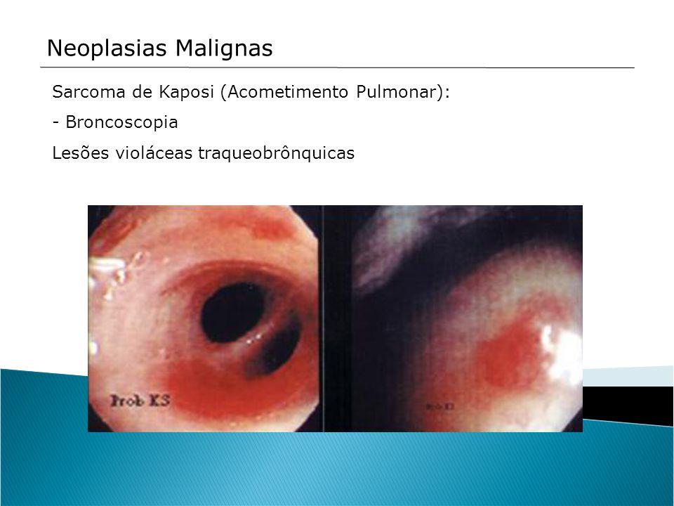 Neoplasias Malignas Sarcoma de Kaposi (Acometimento Pulmonar): - Broncoscopia Lesões violáceas traqueobrônquicas