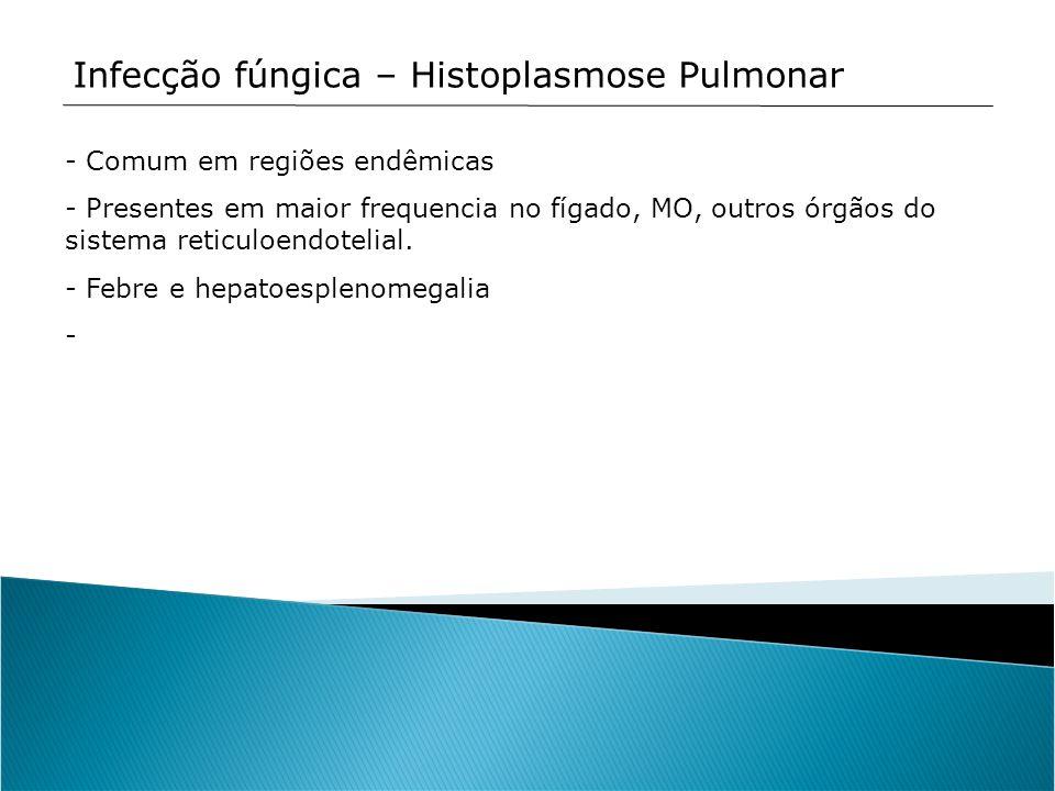 Infecção fúngica – Histoplasmose Pulmonar - Comum em regiões endêmicas - Presentes em maior frequencia no fígado, MO, outros órgãos do sistema reticul