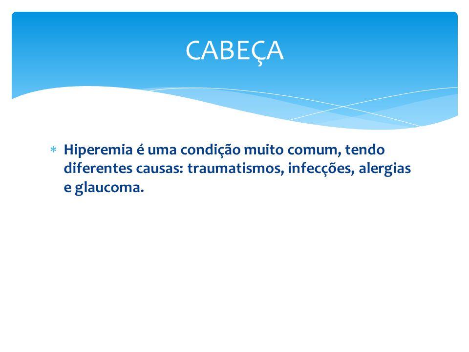 Hiperemia é uma condição muito comum, tendo diferentes causas: traumatismos, infecções, alergias e glaucoma. CABEÇA