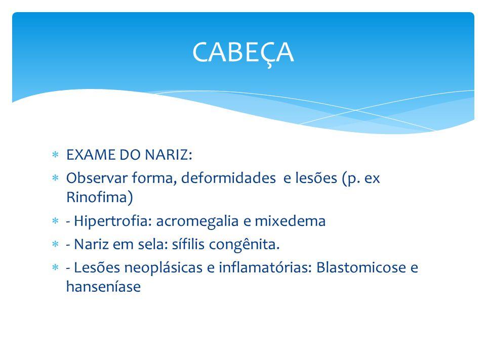EXAME DO NARIZ: Observar forma, deformidades e lesões (p. ex Rinofima) - Hipertrofia: acromegalia e mixedema - Nariz em sela: sífilis congênita. - Les