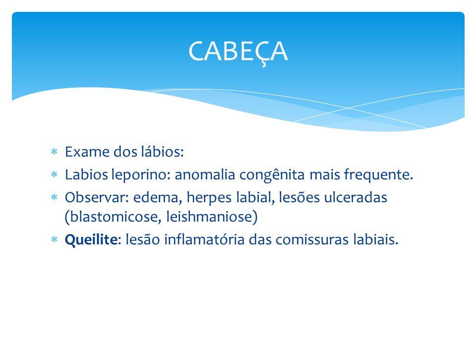 Exame dos lábios: Labios leporino: anomalia congênita mais frequente. Observar: edema, herpes labial, lesões ulceradas (blastomicose, leishmaniose) Qu