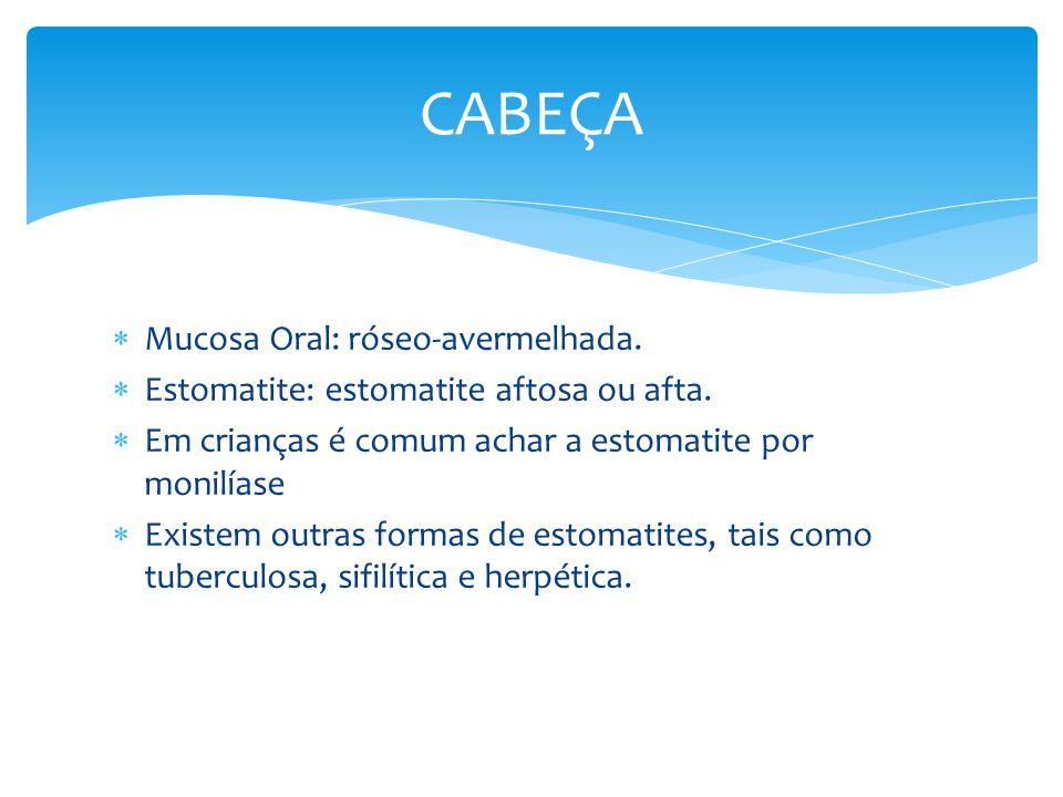 Mucosa Oral: róseo-avermelhada. Estomatite: estomatite aftosa ou afta. Em crianças é comum achar a estomatite por monilíase Existem outras formas de e