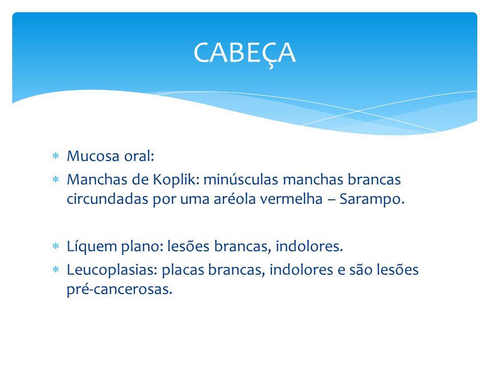 Mucosa oral: Manchas de Koplik: minúsculas manchas brancas circundadas por uma aréola vermelha – Sarampo. Líquem plano: lesões brancas, indolores. Leu