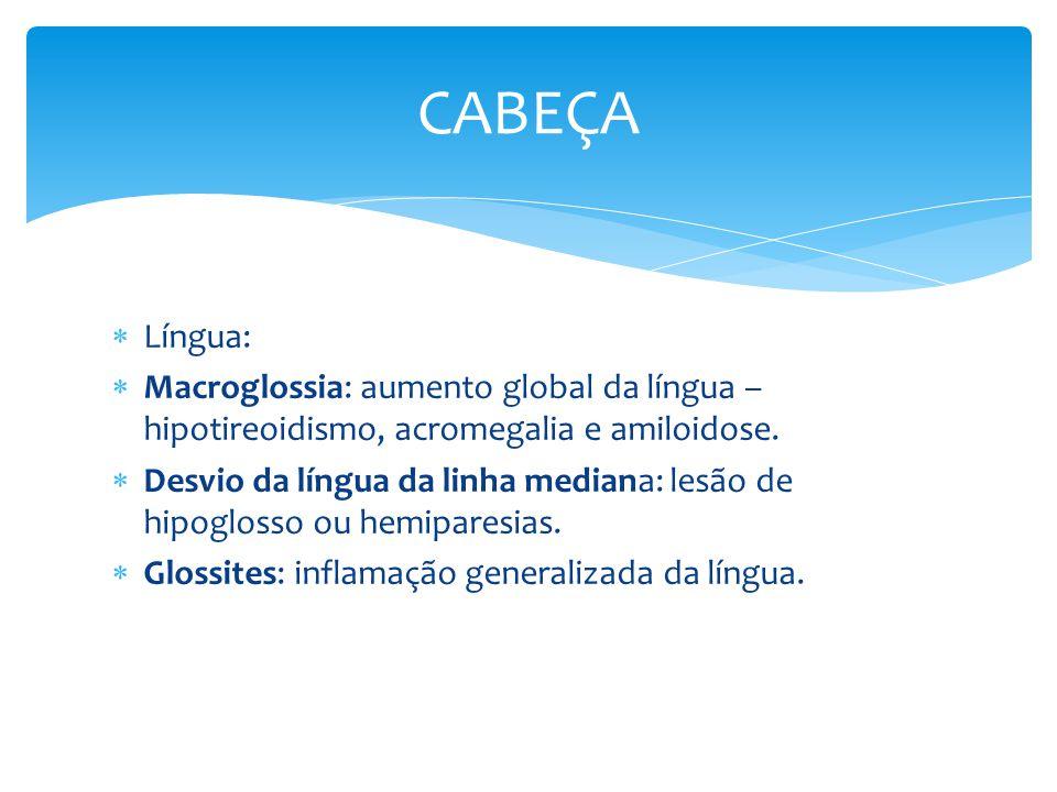Língua: Macroglossia: aumento global da língua – hipotireoidismo, acromegalia e amiloidose. Desvio da língua da linha mediana: lesão de hipoglosso ou