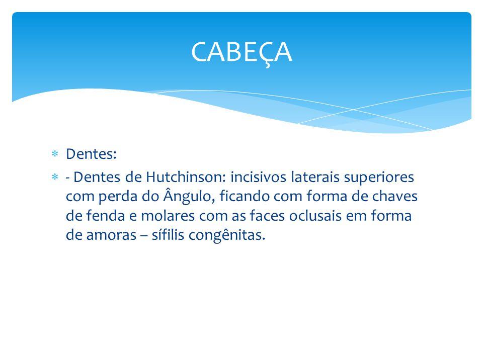 Dentes: - Dentes de Hutchinson: incisivos laterais superiores com perda do Ângulo, ficando com forma de chaves de fenda e molares com as faces oclusai