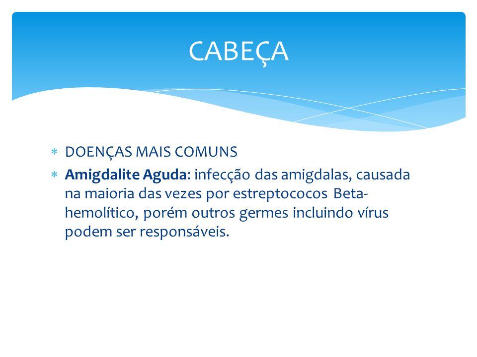 DOENÇAS MAIS COMUNS Amigdalite Aguda: infecção das amigdalas, causada na maioria das vezes por estreptococos Beta- hemolítico, porém outros germes inc
