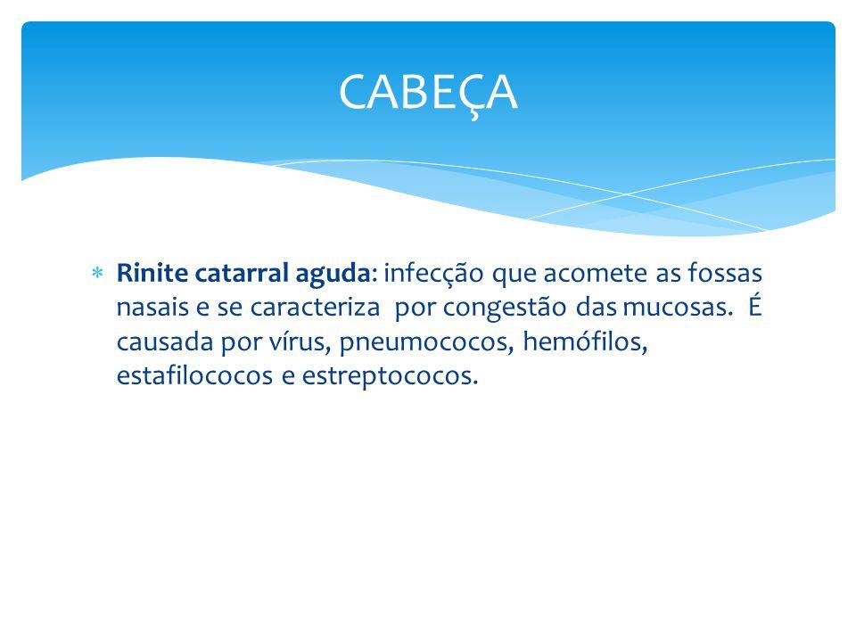 Rinite catarral aguda: infecção que acomete as fossas nasais e se caracteriza por congestão das mucosas. É causada por vírus, pneumococos, hemófilos,