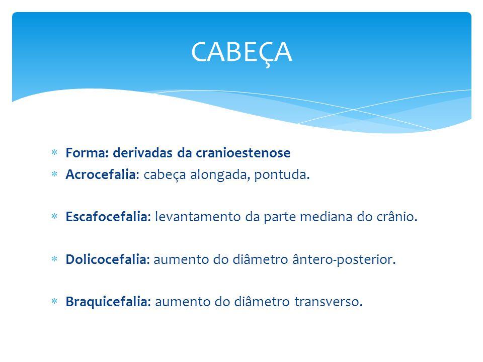Forma: derivadas da cranioestenose Acrocefalia: cabeça alongada, pontuda. Escafocefalia: levantamento da parte mediana do crânio. Dolicocefalia: aumen