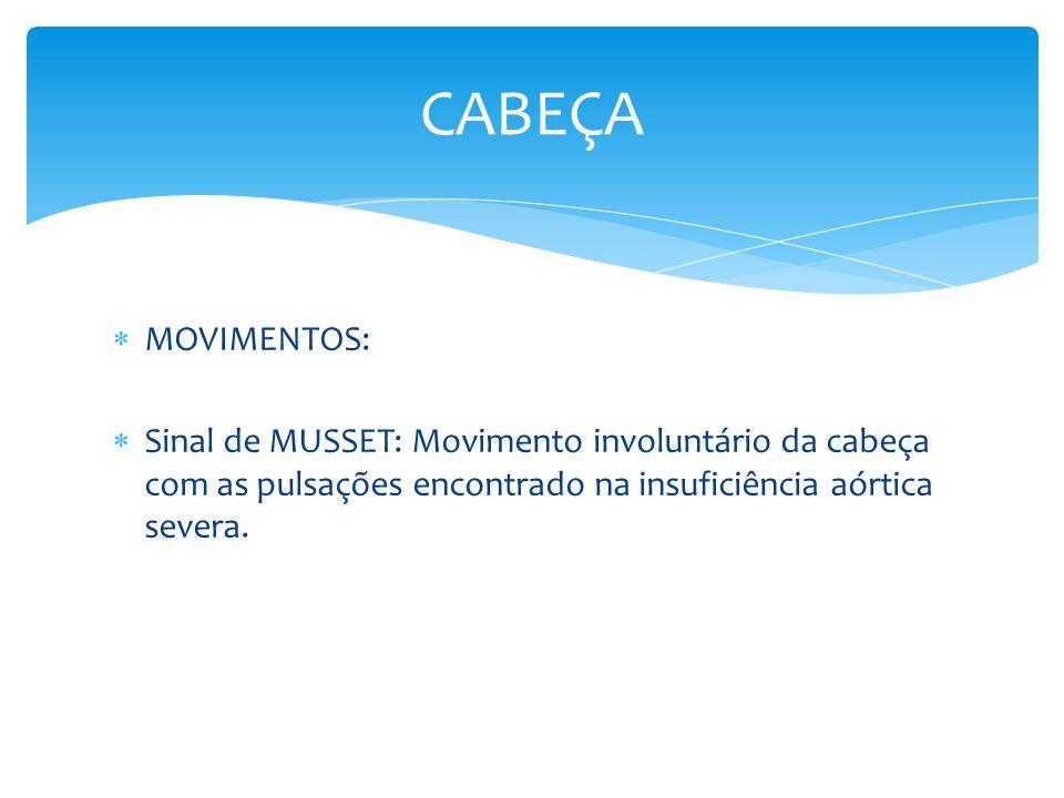 MOVIMENTOS: Sinal de MUSSET: Movimento involuntário da cabeça com as pulsações encontrado na insuficiência aórtica severa. CABEÇA