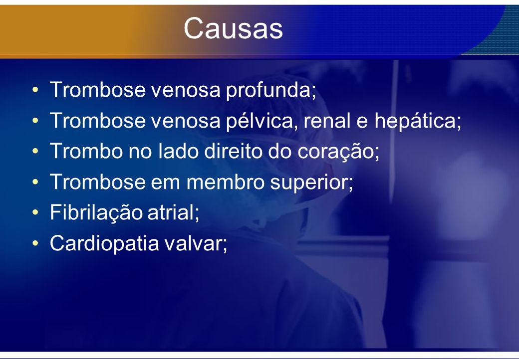 Causas Trombose venosa profunda; Trombose venosa pélvica, renal e hepática; Trombo no lado direito do coração; Trombose em membro superior; Fibrilação