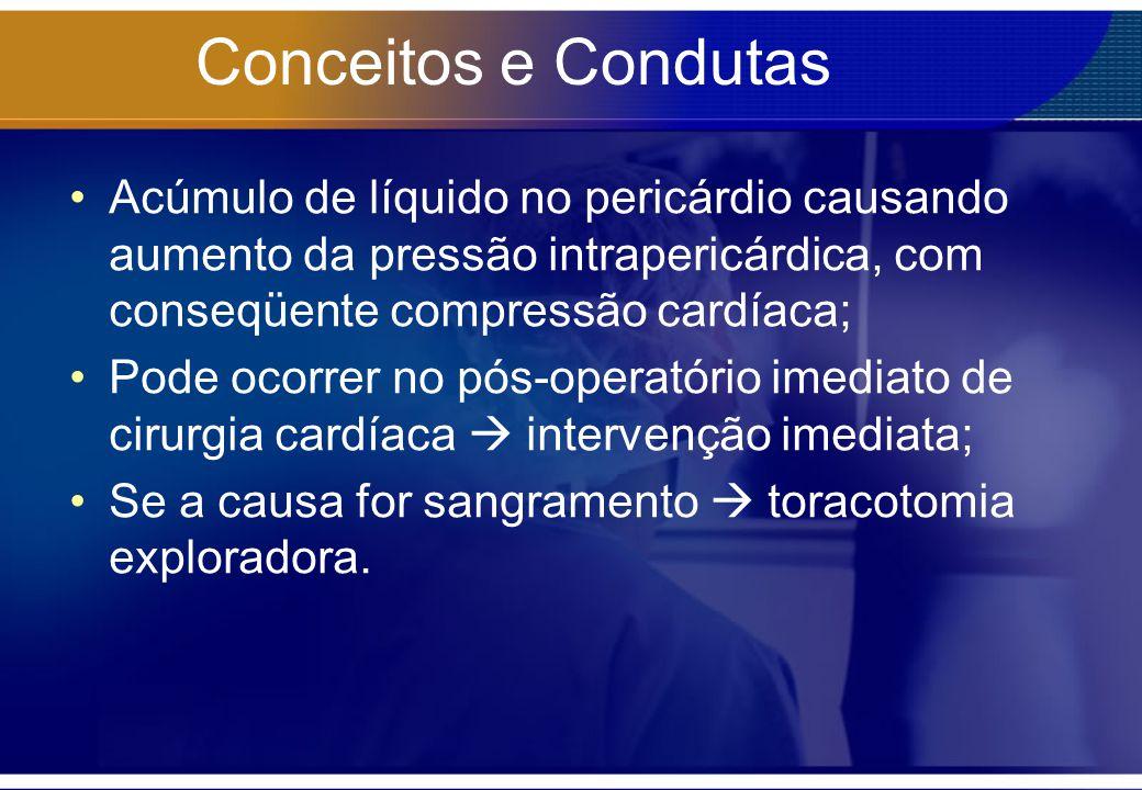 Conceitos e Condutas Acúmulo de líquido no pericárdio causando aumento da pressão intrapericárdica, com conseqüente compressão cardíaca; Pode ocorrer