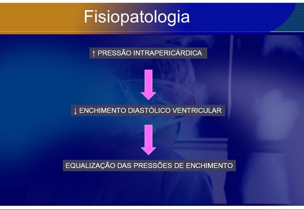 Fisiopatologia PRESSÃO INTRAPERICÁRDICA ENCHIMENTO DIASTÓLICO VENTRICULAR EQUALIZAÇÃO DAS PRESSÕES DE ENCHIMENTO