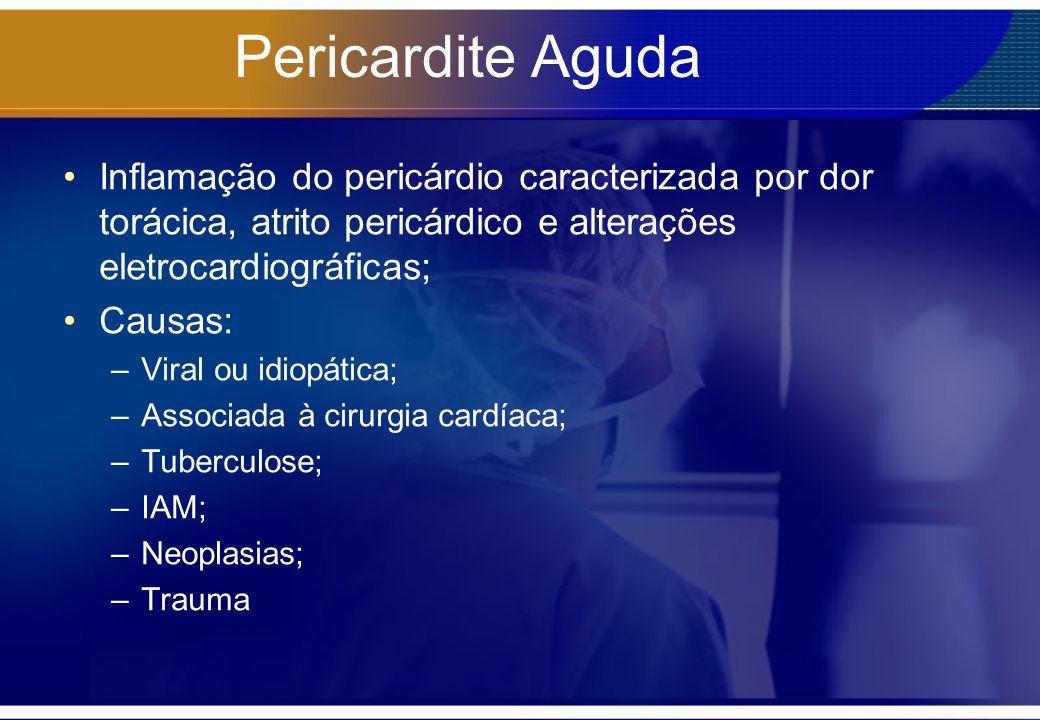 Pericardite Aguda Inflamação do pericárdio caracterizada por dor torácica, atrito pericárdico e alterações eletrocardiográficas; Causas: –Viral ou idi