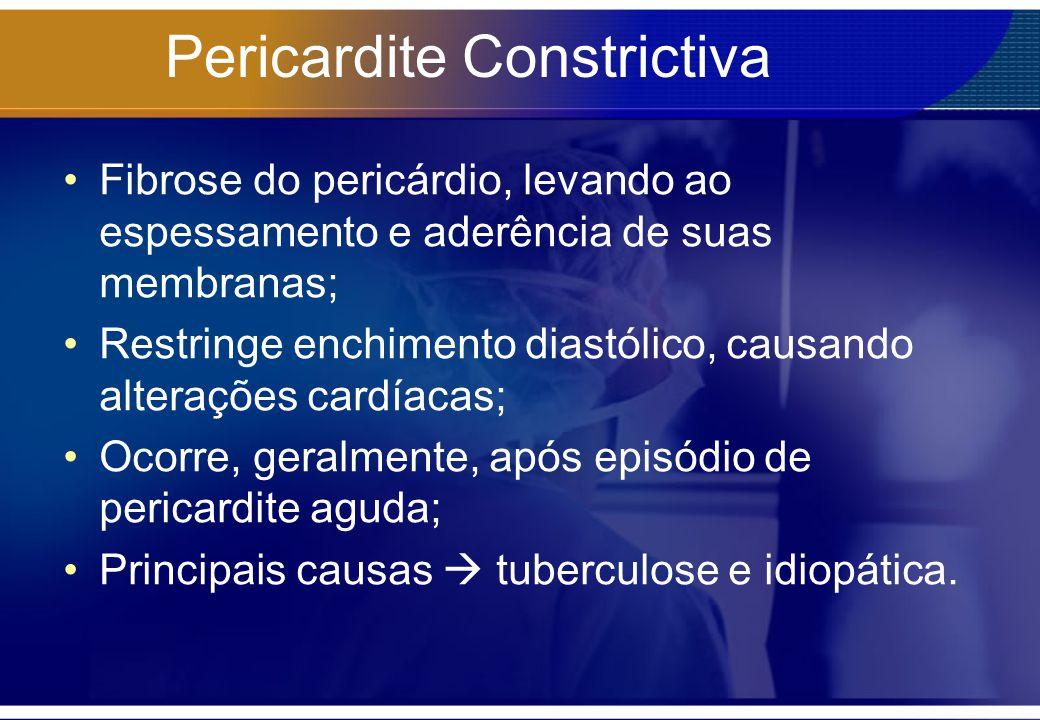 Pericardite Constrictiva Fibrose do pericárdio, levando ao espessamento e aderência de suas membranas; Restringe enchimento diastólico, causando alter