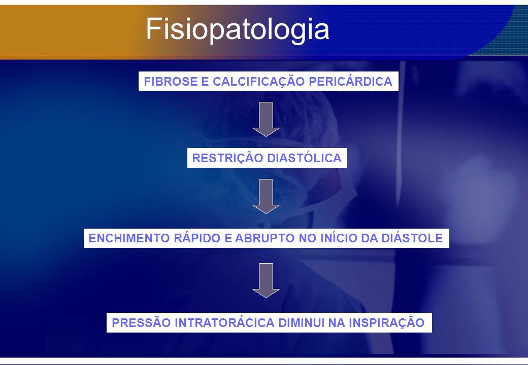 Fisiopatologia FIBROSE E CALCIFICAÇÃO PERICÁRDICA RESTRIÇÃO DIASTÓLICA ENCHIMENTO RÁPIDO E ABRUPTO NO INÍCIO DA DIÁSTOLE PRESSÃO INTRATORÁCICA DIMINUI