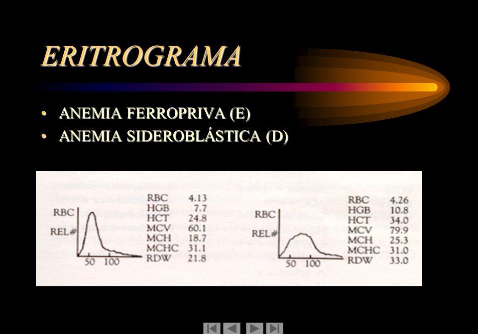 ERITROGRAMA ANEMIA FERROPRIVA (E)ANEMIA FERROPRIVA (E) ANEMIA SIDEROBLÁSTICA (D)ANEMIA SIDEROBLÁSTICA (D)