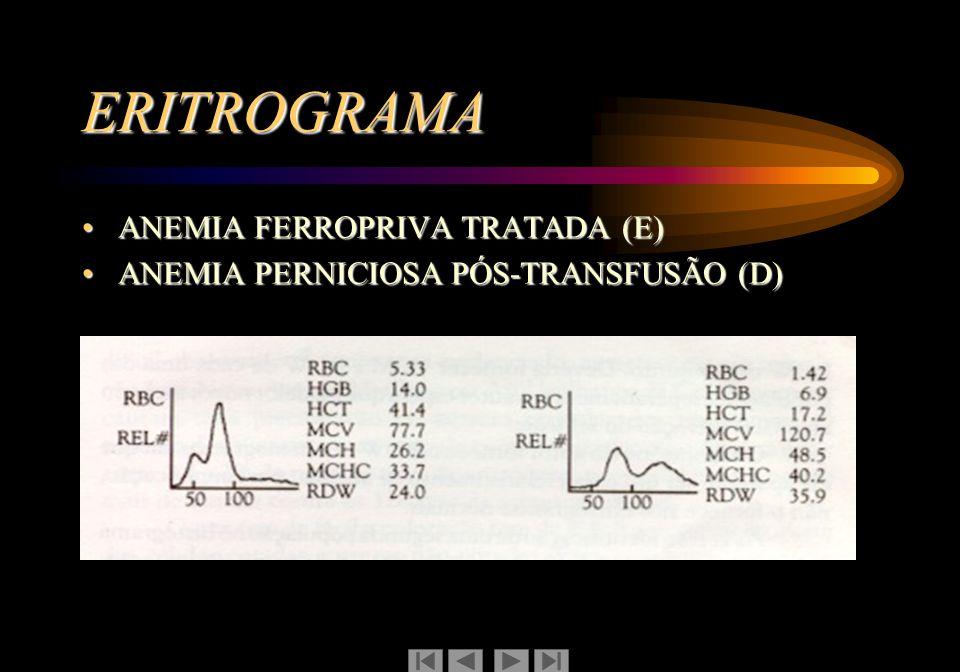 ERITROGRAMA ANEMIA FERROPRIVA TRATADA (E)ANEMIA FERROPRIVA TRATADA (E) ANEMIA PERNICIOSA PÓS-TRANSFUSÃO (D)ANEMIA PERNICIOSA PÓS-TRANSFUSÃO (D)