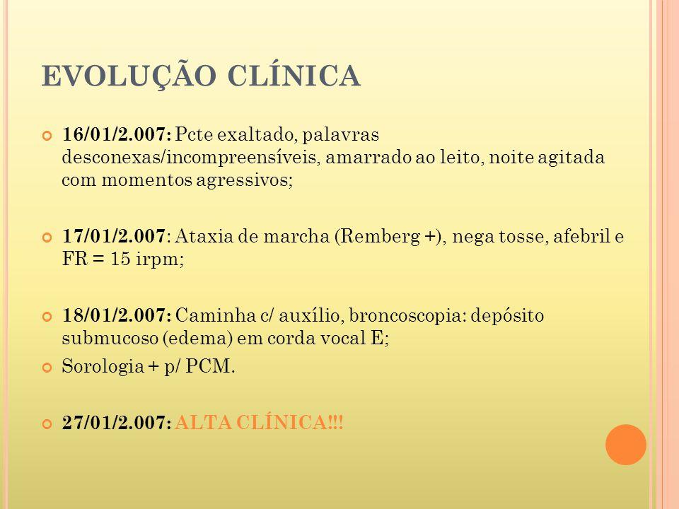 EVOLUÇÃO CLÍNICA 16/01/2.007: Pcte exaltado, palavras desconexas/incompreensíveis, amarrado ao leito, noite agitada com momentos agressivos; 17/01/2.007 : Ataxia de marcha (Remberg +), nega tosse, afebril e FR = 15 irpm; 18/01/2.007: Caminha c/ auxílio, broncoscopia: depósito submucoso (edema) em corda vocal E; Sorologia + p/ PCM.