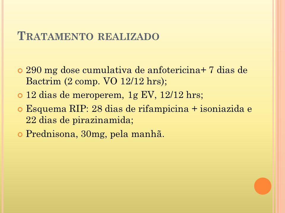 T RATAMENTO REALIZADO 290 mg dose cumulativa de anfotericina+ 7 dias de Bactrim (2 comp.