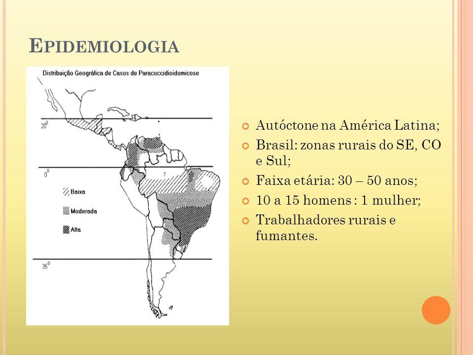 E PIDEMIOLOGIA Autóctone na América Latina; Brasil: zonas rurais do SE, CO e Sul; Faixa etária: 30 – 50 anos; 10 a 15 homens : 1 mulher; Trabalhadores rurais e fumantes.