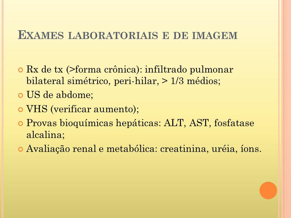 E XAMES LABORATORIAIS E DE IMAGEM Rx de tx (>forma crônica): infiltrado pulmonar bilateral simétrico, peri-hilar, > 1/3 médios; US de abdome; VHS (verificar aumento); Provas bioquímicas hepáticas: ALT, AST, fosfatase alcalina; Avaliação renal e metabólica: creatinina, uréia, íons.