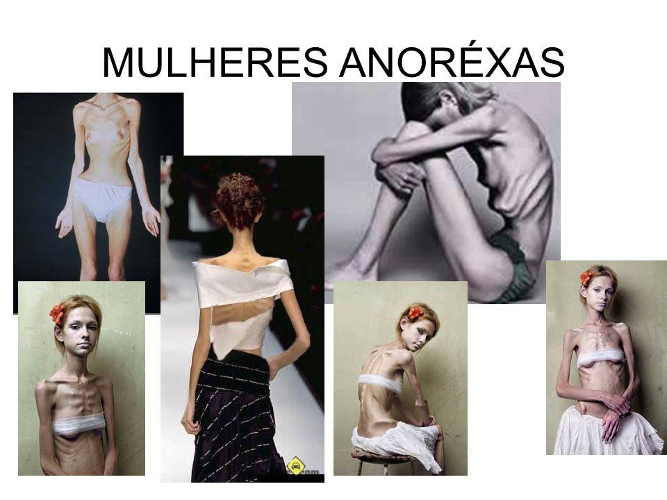 MULHERES ANORÉXAS