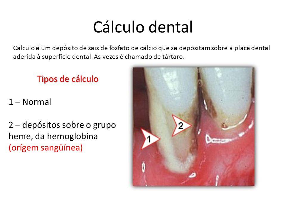 Cálculo dental Cálculo é um depósito de sais de fosfato de cálcio que se depositam sobre a placa dental aderida à superfície dental. As vezes é chamad