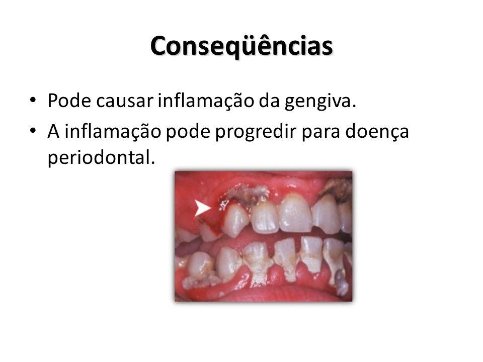 Conseqüências Pode causar inflamação da gengiva. A inflamação pode progredir para doença periodontal.