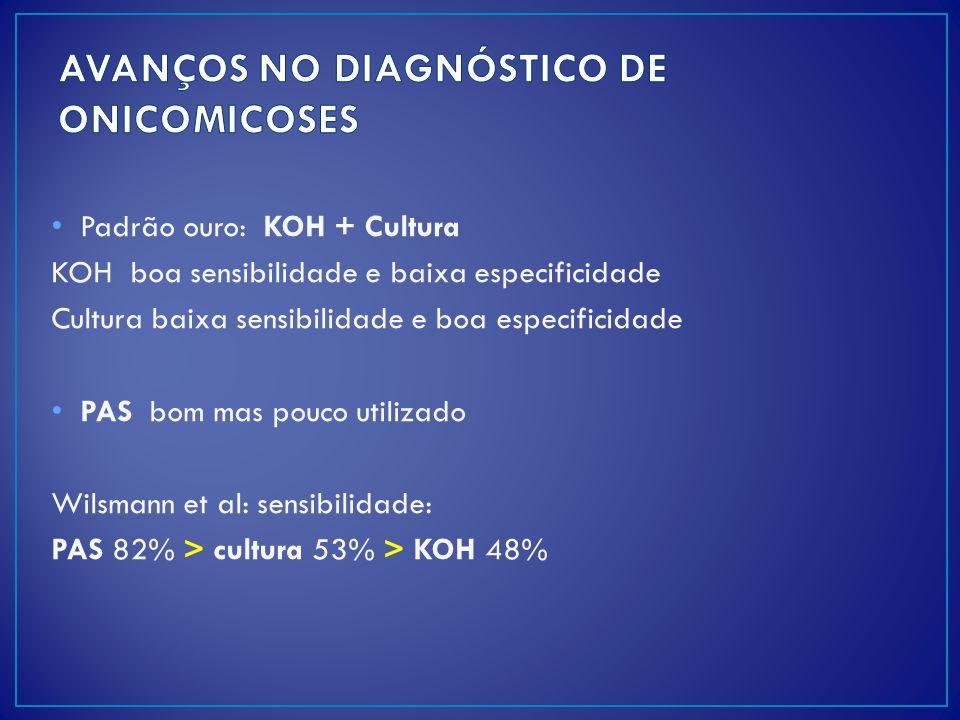 Padrão ouro: KOH + Cultura KOH boa sensibilidade e baixa especificidade Cultura baixa sensibilidade e boa especificidade PAS bom mas pouco utilizado W