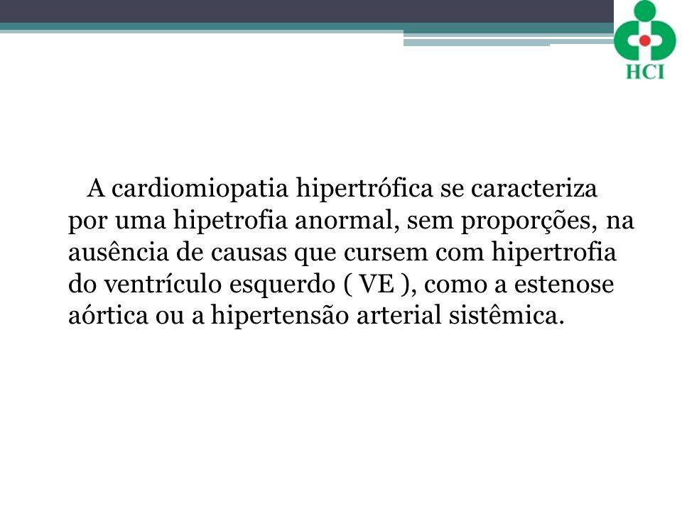 A cardiomiopatia hipertrófica se caracteriza por uma hipetrofia anormal, sem proporções, na ausência de causas que cursem com hipertrofia do ventrícul
