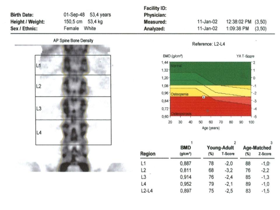Dieta balanceada rica em: Cálcio Fósforo Vitamina D Prática de atividade física orientada Prevenção de quedas
