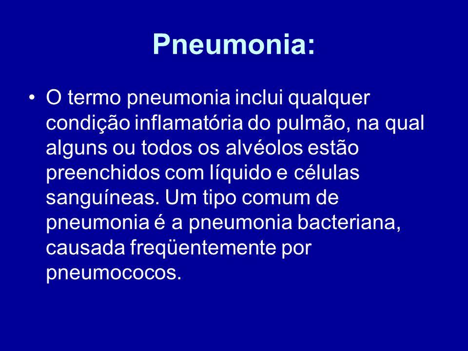 Pneumonia: O termo pneumonia inclui qualquer condição inflamatória do pulmão, na qual alguns ou todos os alvéolos estão preenchidos com líquido e célu