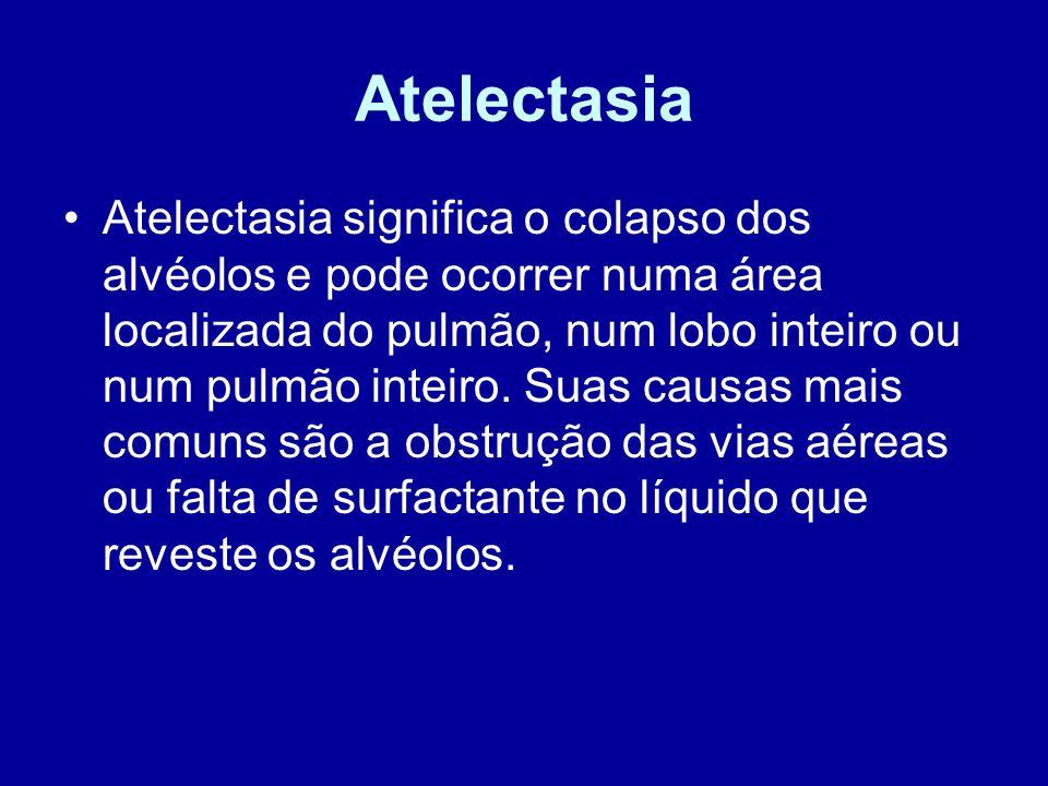Atelectasia Atelectasia significa o colapso dos alvéolos e pode ocorrer numa área localizada do pulmão, num lobo inteiro ou num pulmão inteiro. Suas c
