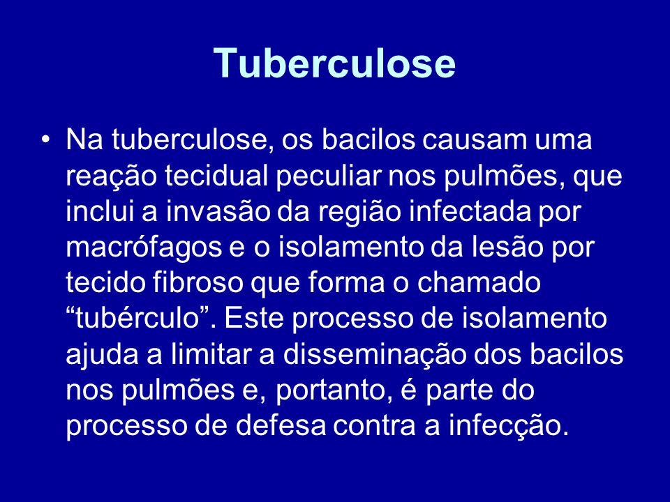 Tuberculose Na tuberculose, os bacilos causam uma reação tecidual peculiar nos pulmões, que inclui a invasão da região infectada por macrófagos e o is