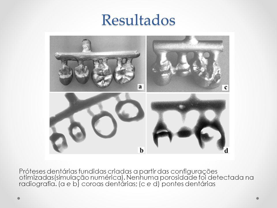 Resultados Próteses dentárias fundidas criadas a partir das configurações otimizadas(simulação numérica). Nenhuma porosidade foi detectada na radiogra