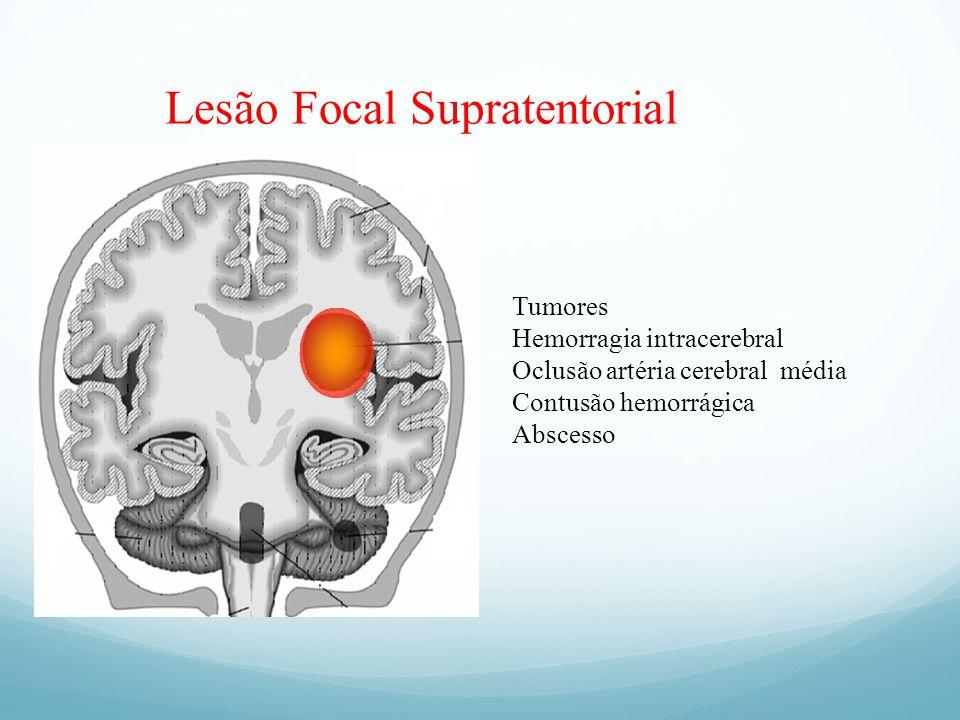 Lesão Focal Supratentorial Tumores Hemorragia intracerebral Oclusão artéria cerebral média Contusão hemorrágica Abscesso