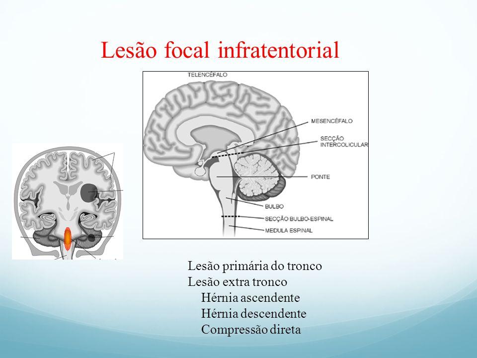 Lesão focal infratentorial Lesão primária do tronco Lesão extra tronco Hérnia ascendente Hérnia descendente Compressão direta