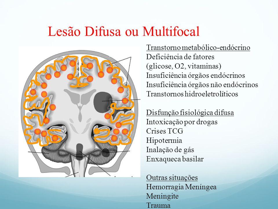 Lesão Difusa ou Multifocal Transtorno metabólico-endócrino Deficiência de fatores (glicose, O2, vitaminas) Insuficiência órgãos endócrinos Insuficiênc