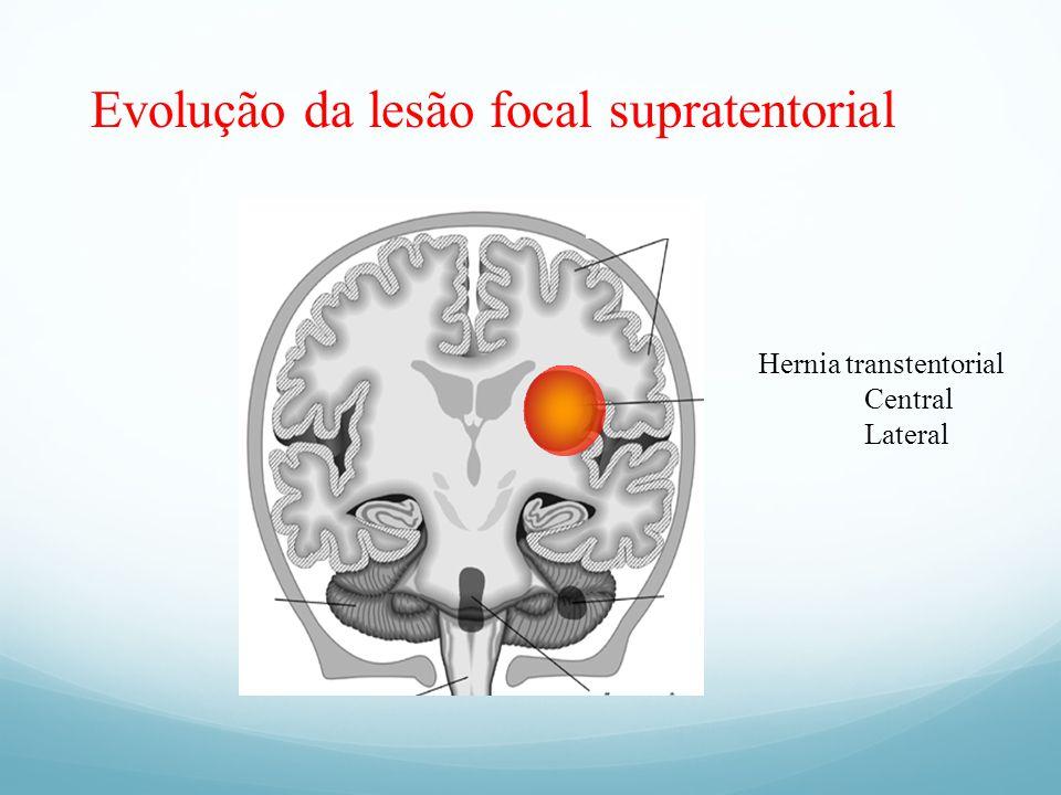 Evolução da lesão focal supratentorial Hernia transtentorial Central Lateral