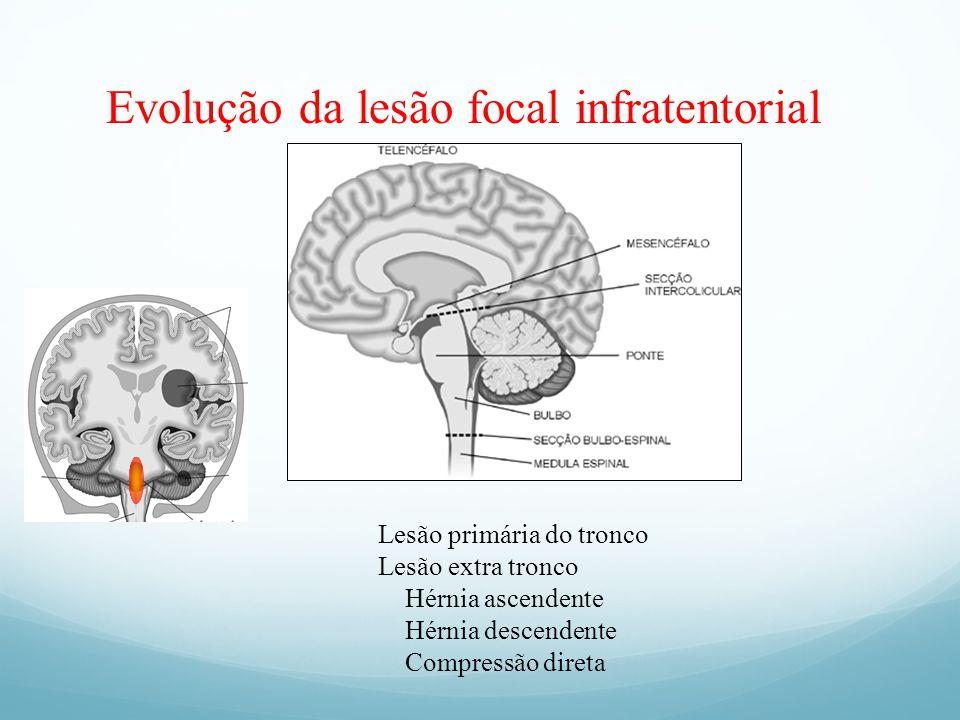 Evolução da lesão focal infratentorial Lesão primária do tronco Lesão extra tronco Hérnia ascendente Hérnia descendente Compressão direta