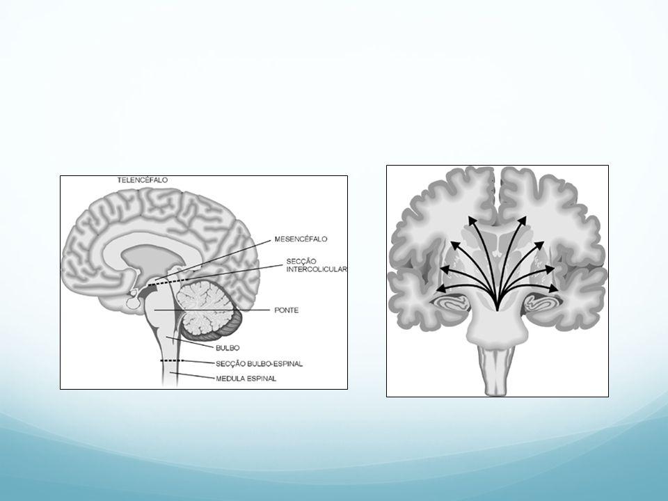 MORTE ENCEFÁLICA Resolução CFM nº 1.480/97 Exames complementares para o diagnóstico: EEG – (entre 7 dias a 2 meses de vida) – dois exames com intervalo de 48h Doppler transcraniano Arteriografia cerebral dos quatro vasos Cintilografia radioisotópica cerebral Monitorização da pressão intra-craniana Tomografia computadorizada com xenônio Tomografia por emissão de foton único Tomografia por emissão de pósitrons Extração cerebral de oxigênio