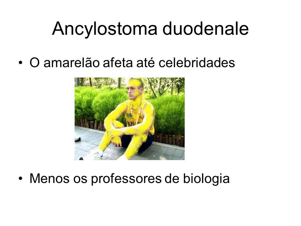 Ancylostoma duodenale O amarelão afeta até celebridades Menos os professores de biologia