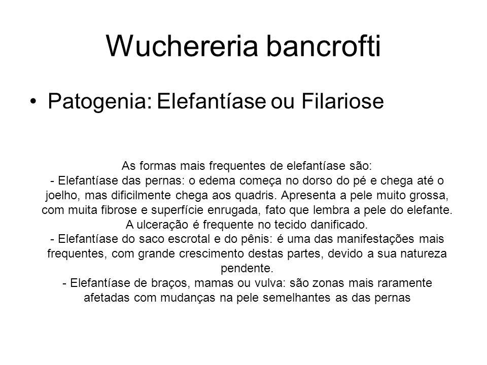 Wuchereria bancrofti Patogenia: Elefantíase ou Filariose As formas mais frequentes de elefantíase são: - Elefantíase das pernas: o edema começa no dor