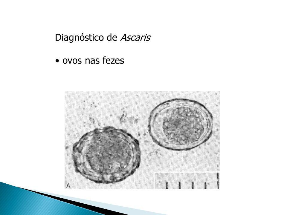 Diagnóstico de Ascaris ovos nas fezes