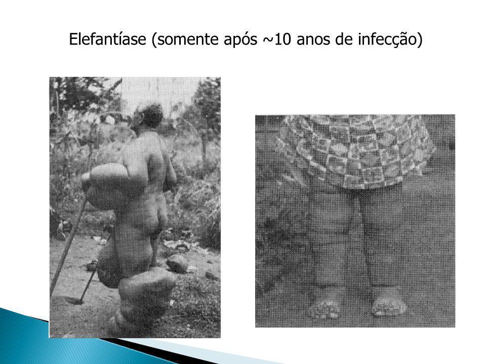 Elefantíase (somente após ~10 anos de infecção)