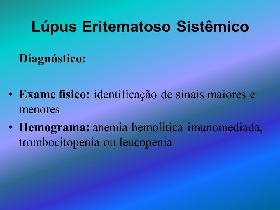 Lúpus Eritematoso Sistêmico Diagnóstico: Exame físico: identificação de sinais maiores e menores Hemograma: anemia hemolítica imunomediada, trombocito