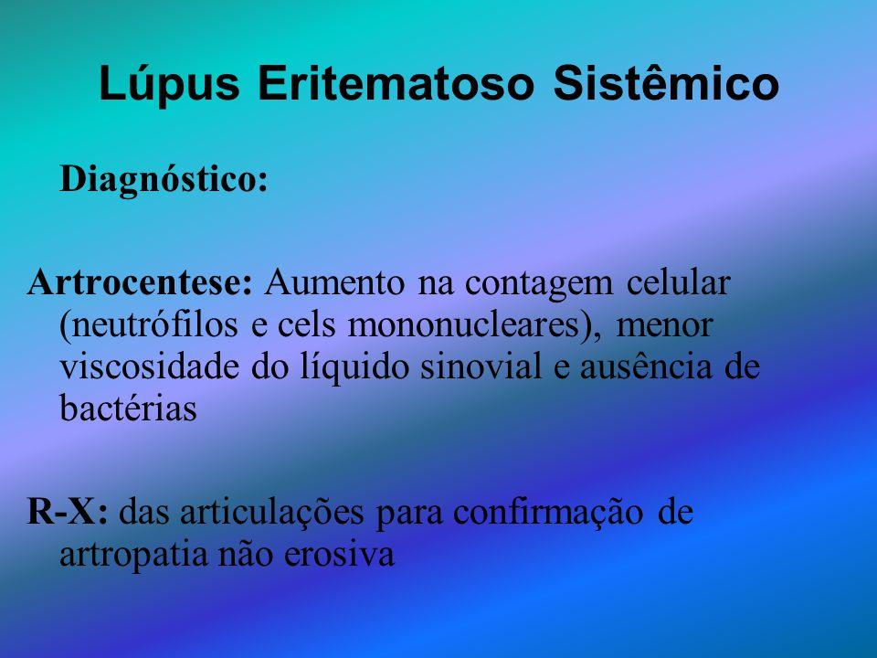 Lúpus Eritematoso Sistêmico Diagnóstico: Artrocentese: Aumento na contagem celular (neutrófilos e cels mononucleares), menor viscosidade do líquido si