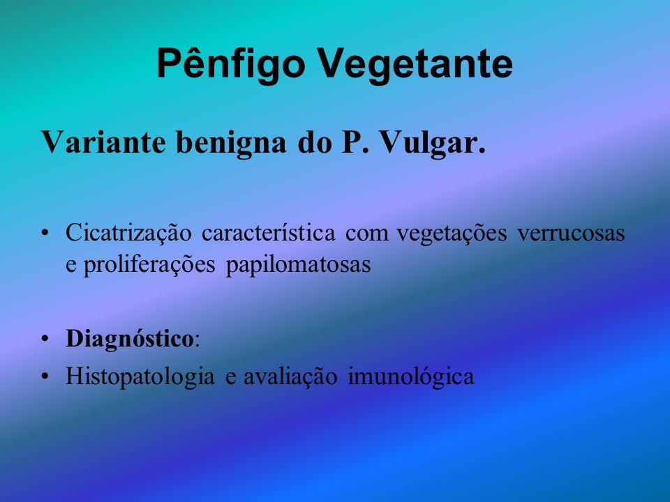 Pênfigo Vegetante Variante benigna do P. Vulgar. Cicatrização característica com vegetações verrucosas e proliferações papilomatosas Diagnóstico: Hist