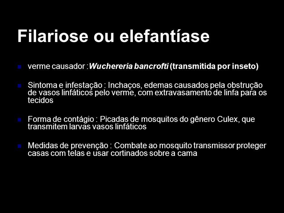Filariose ou elefantíase verme causador :Wuchereria bancrofti (transmitida por inseto) Sintoma e infestação : Inchaços, edemas causados pela obstrução