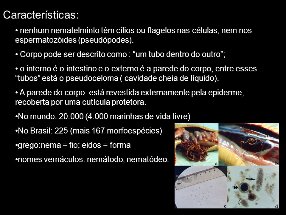 Características: nenhum nematelminto têm cílios ou flagelos nas células, nem nos espermatozóides (pseudópodes). Corpo pode ser descrito como : um tubo